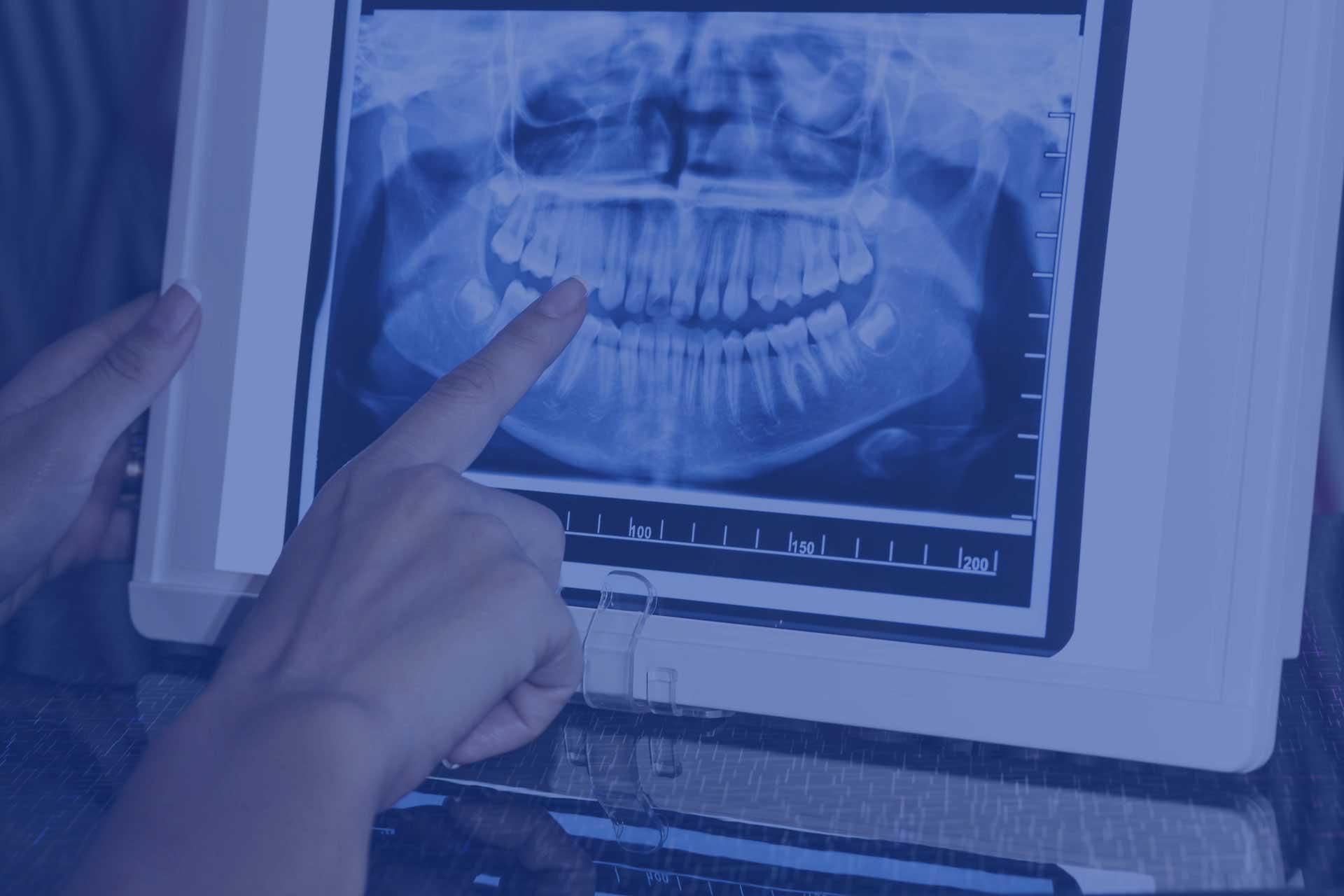 Slide 1 RX Dental