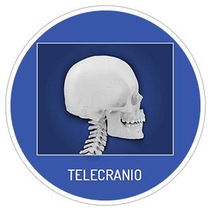 Telecranio Radiografia per intero della testa in occlusione